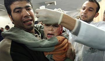 Niño herido por ataques israelies en Gaza (AFP).
